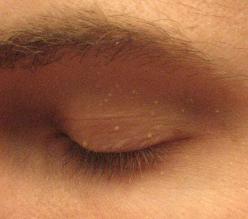 粟粒肿(Milia),图片来源:wikipedia