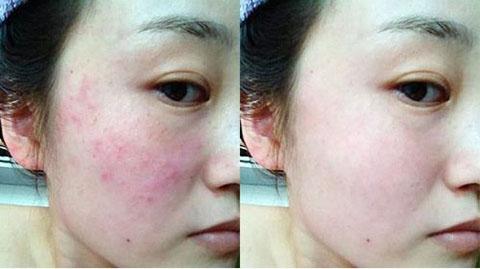 皮肤过敏瘙痒怎么办 五大妙招解决皮肤过敏痒图片