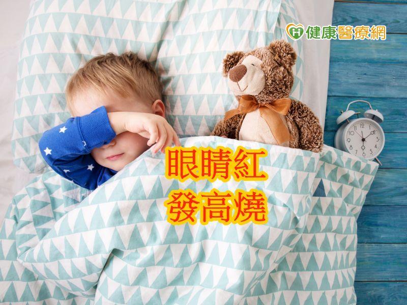 5岁男童发烧1周 川崎氏症作祟