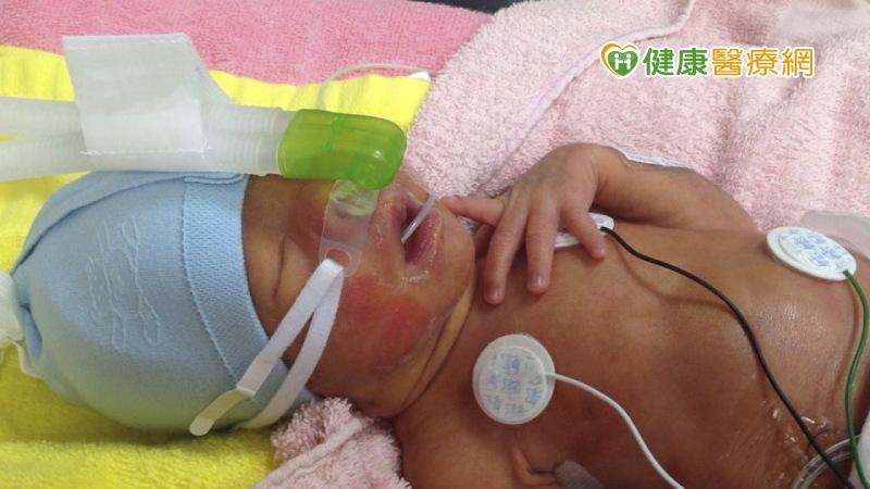 三分之一早产儿呼吸窘迫 呼吸器同步可减少肺损伤